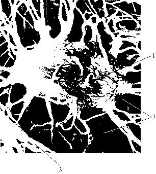 img1 5 строение кости