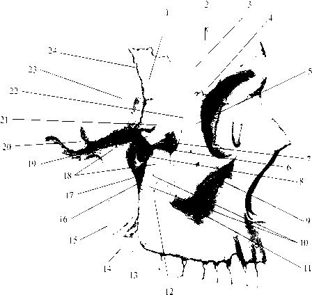 img2 37 задняя черепная ямка (fossa cranii posterior)