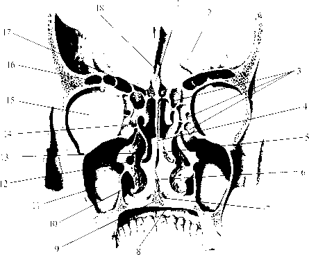 img2 43 костная носовая полость (cavitas nasalis ossea)